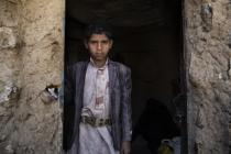 Yahya* y su familia viven en la misma habitación con todas sus posesiones. Deben caminar durante dos horas para llegar a los pozos de agua, que a menudo están contaminados por el cólera. Foto: Gabreez/Oxfam